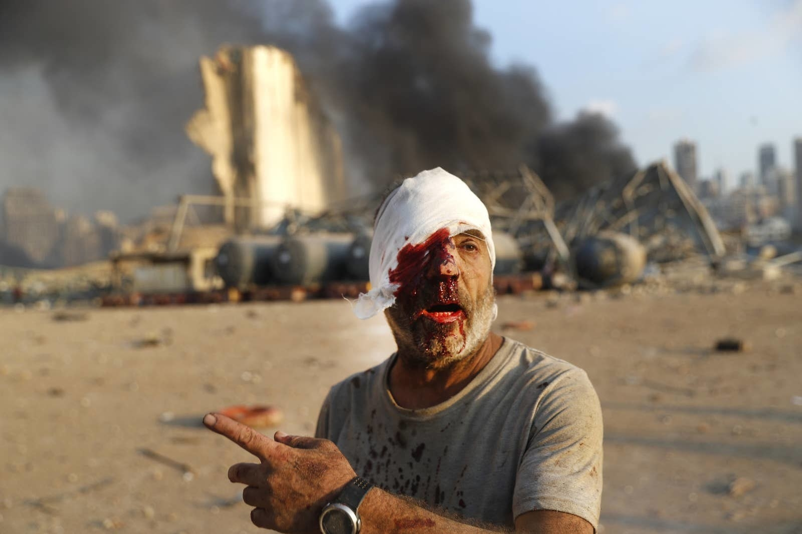 A man with one bloody bandaged eye points with smoke and wreckage behind him