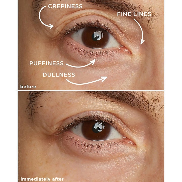 A before-and-after split photo showing a model's eye before and immediately after using the eye cream