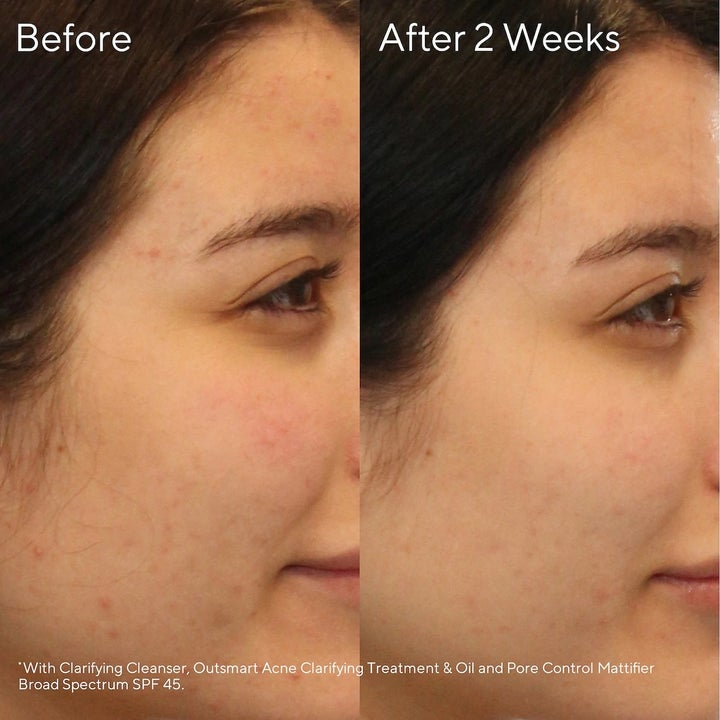 A before-and-after split photo showing how the acne on a woman's skin has lessened after using the skincare set for four weeks