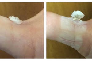 four images of a reviewer's wart breaking through the skin and erupting outward
