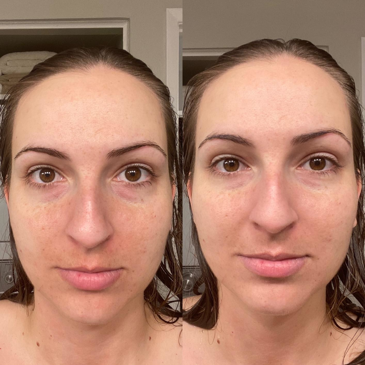 Before and after of reviewer wearing the sunscreen showing that it doesn't look greasy and that it provides a subtle tint