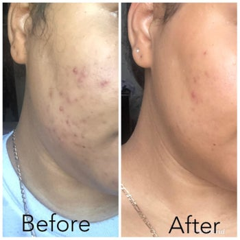 Reviewer's before and after showing the exfoliant dramatically reduced hyperpigmentation on their cheek and made the skin smoother