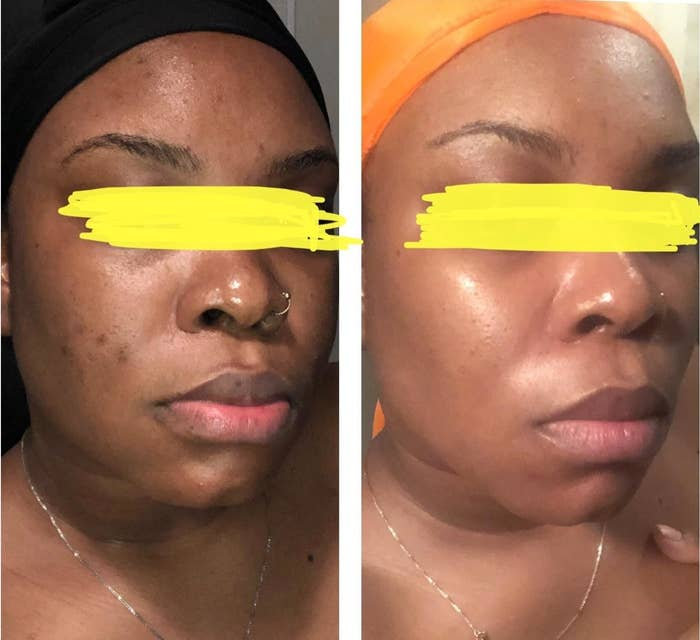 Before and after of reviewer who used the cleanser showing that it evened their skin tone, improved texture, and made their skin glow