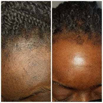 A reviewer with dark skin and their before and after showing the exfoliant brightened dark spots along their hairline and made their skin look bright