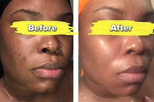 Reviewer before and after showing the product lightened acne scars on their cheek and made their skin look glowy