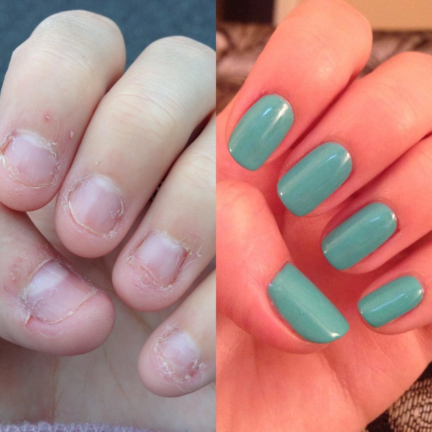 Reviewer before and after shot of nails using product