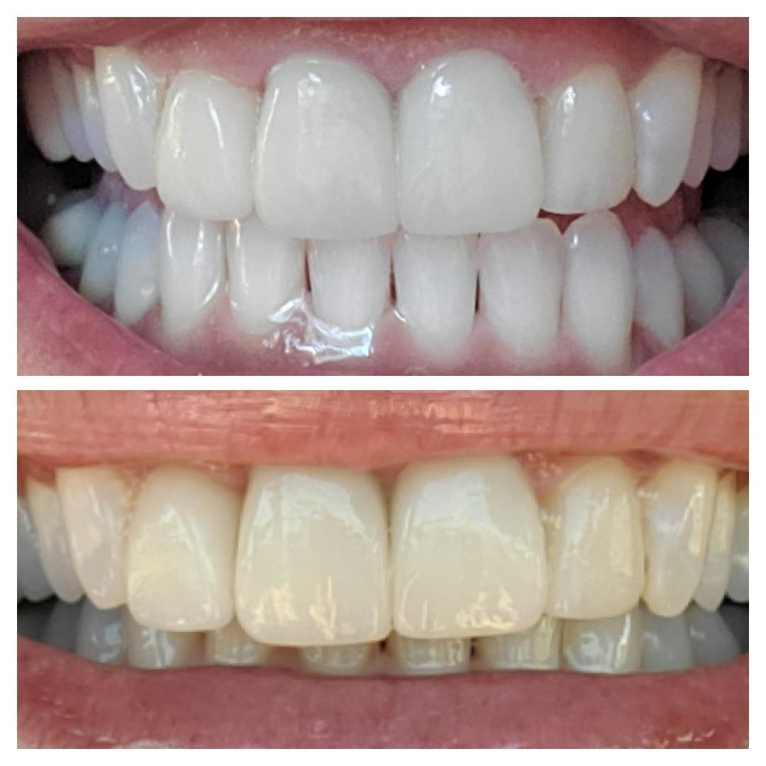 Reviewer before and after photo of teeth using toothpaste