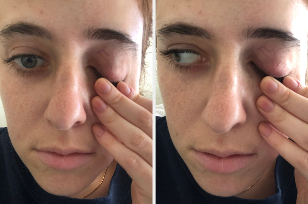 The author pulling down her eyelid with no iris visible.
