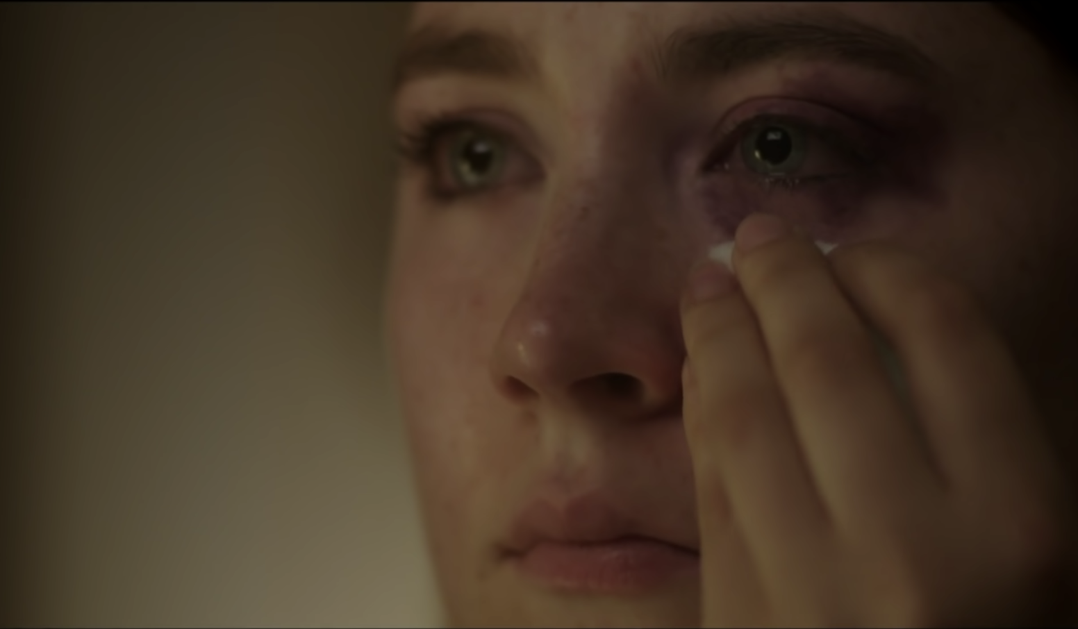 Saoirse Ronan covering up a black eye