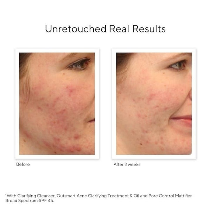 A before-and-after photo showing a person's acne starting to clear up after using the cleanser