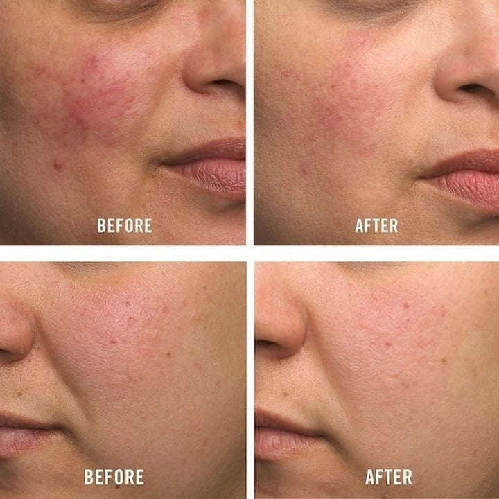 A before-and-after photo showing a person's face looks less red after using the cream