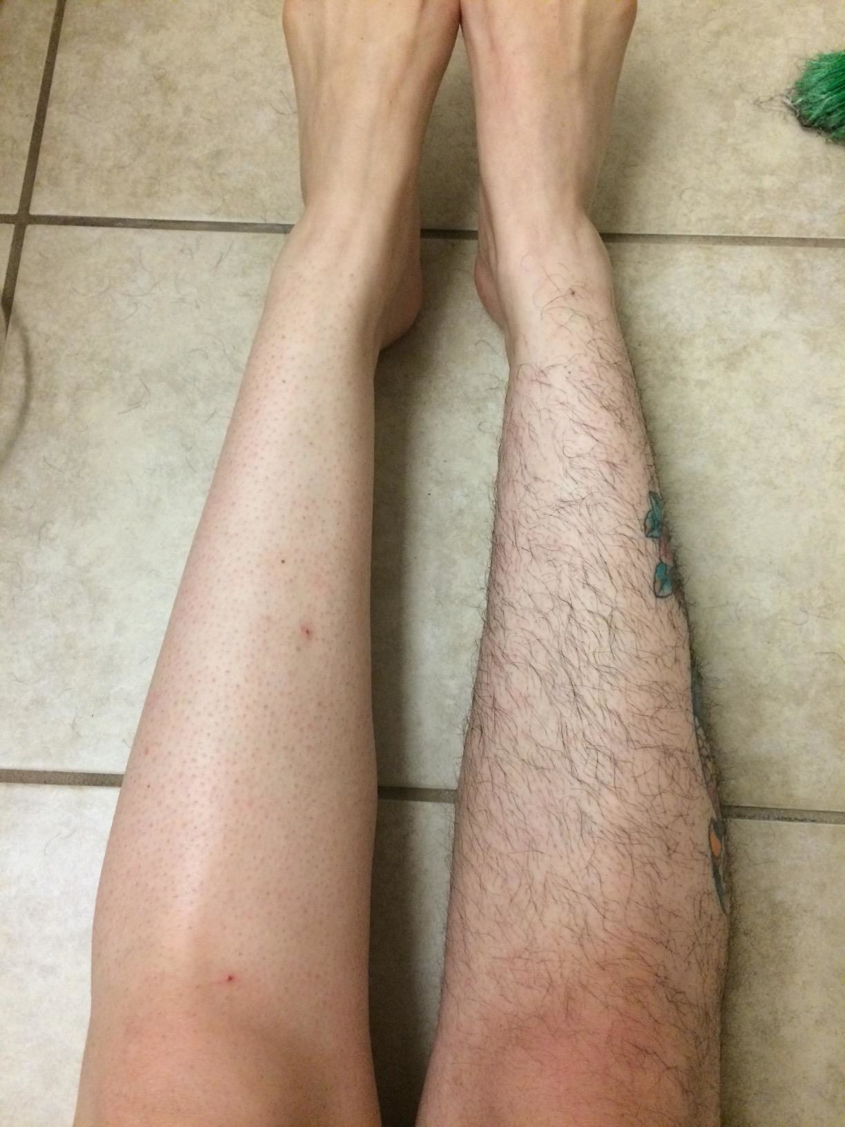 Reviewer comparing their smooth epilated legs to their fuzzy non-epilated leg
