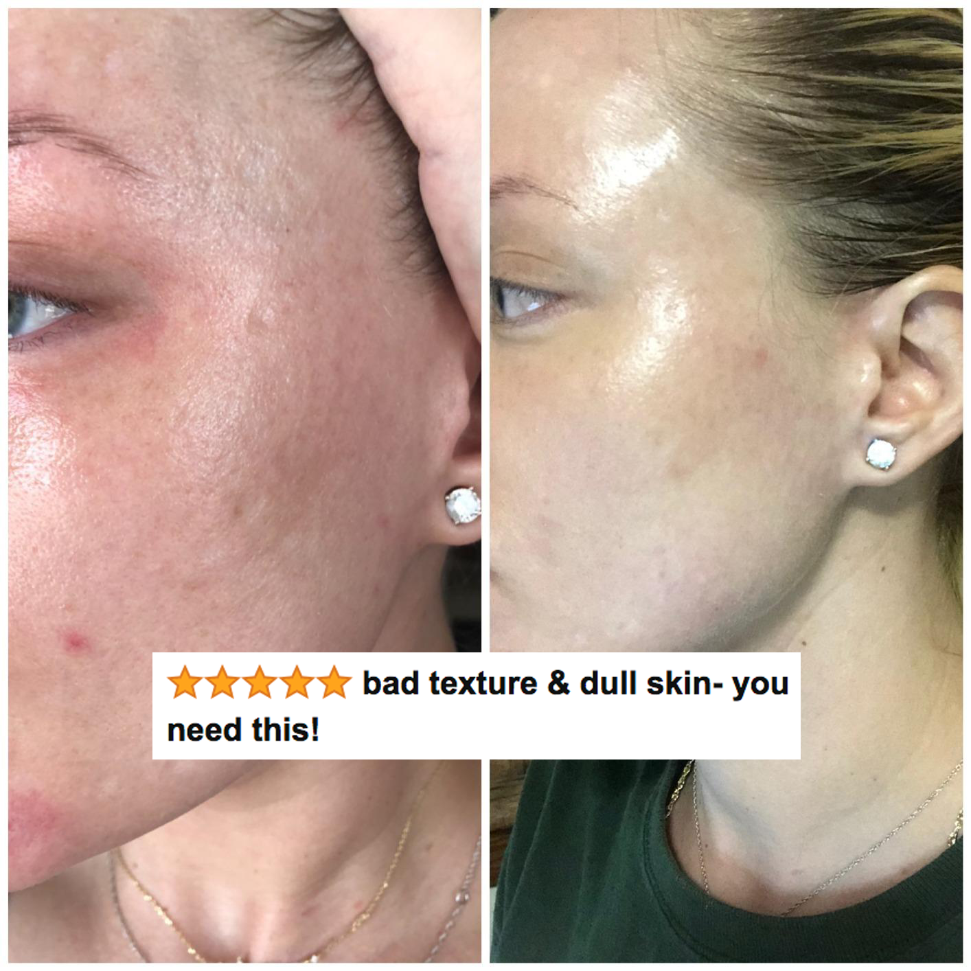 """A reviewer's skin before and after use, with reduced texture, acne, and redness after with five stars and text """"bad texture and dull skin, you need this"""""""