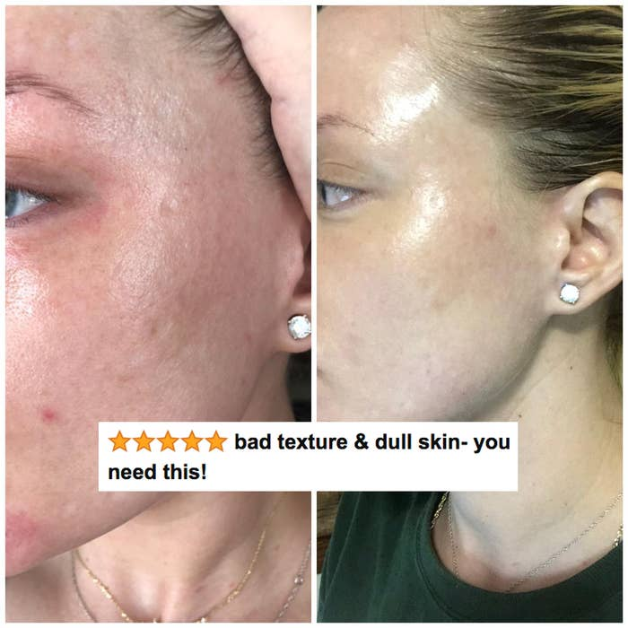 "A reviewer's skin before and after use, with reduced texture, acne, and redness after with five stars and text ""bad texture and dull skin, you need this"""
