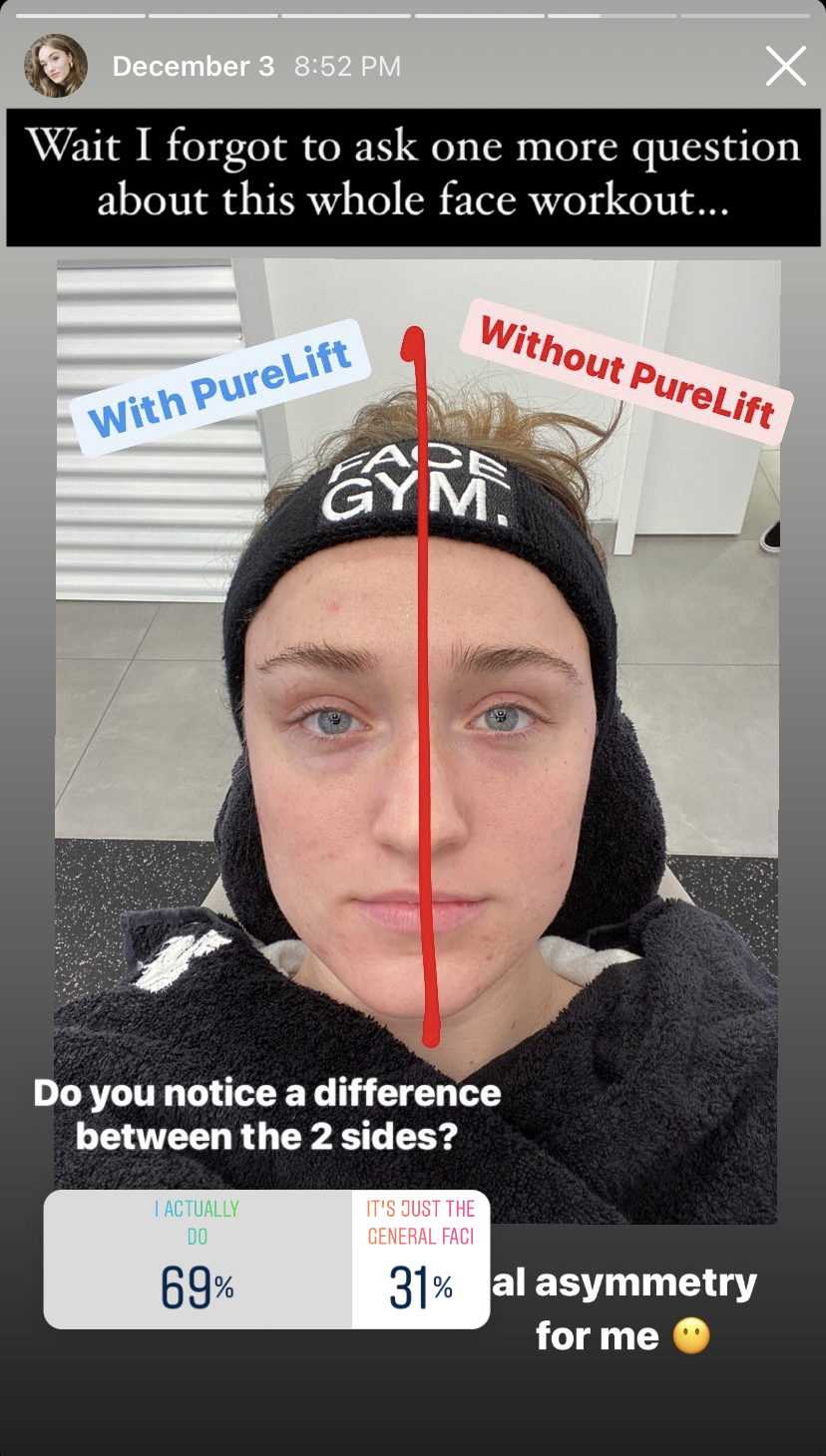 """An Instagram poll asking """"Do you notice a difference between the two sides?""""  and two answers of """"I actually do"""" with 69%, and """"it's just the general facial asymmetry for me"""" with 31%"""