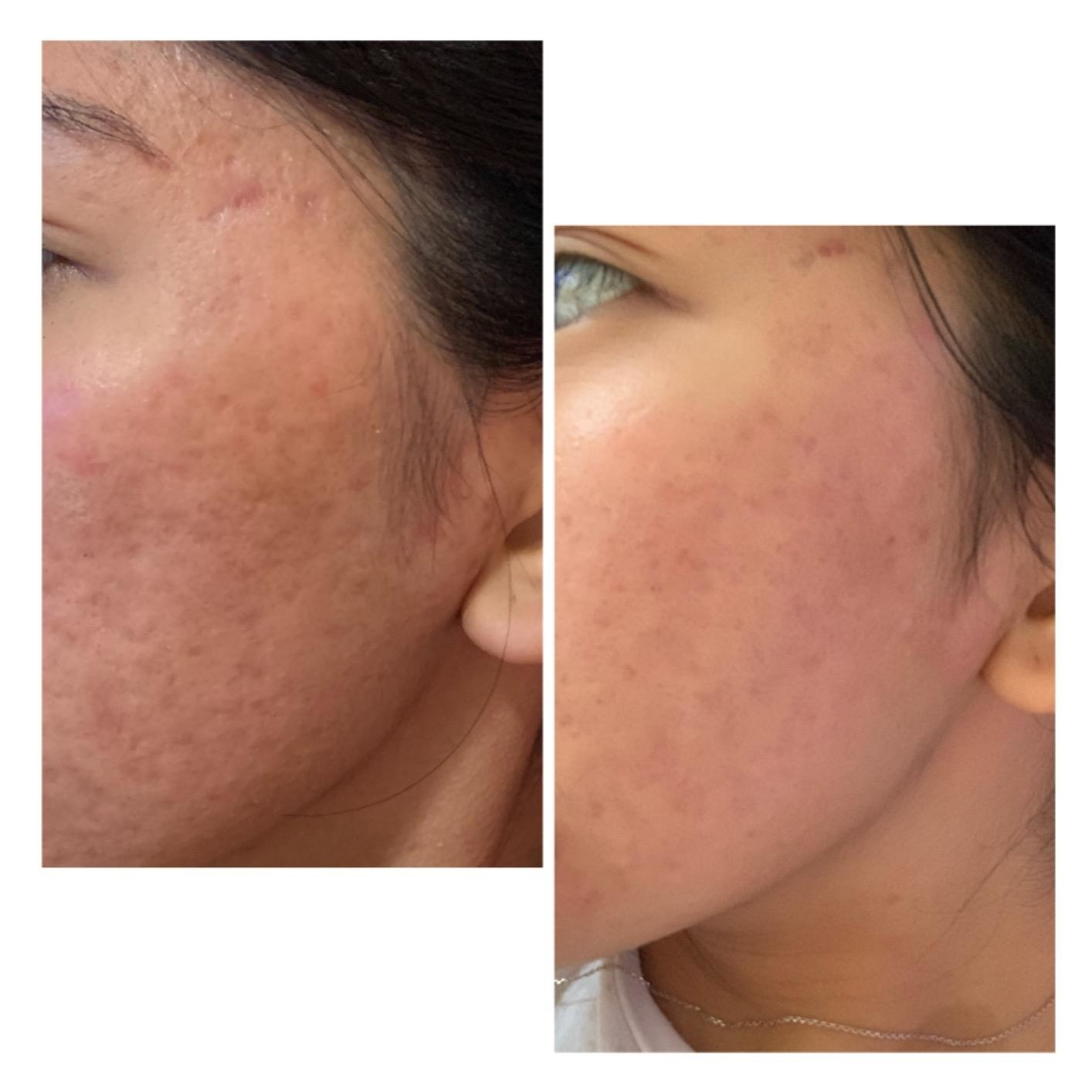 A reviewer's before/after with reduced texture and scarring