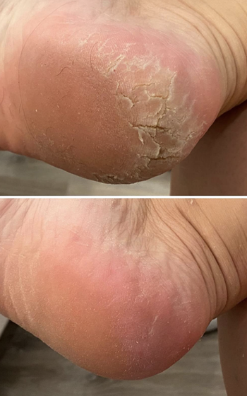 Reviewer before and after feet using foot scraper
