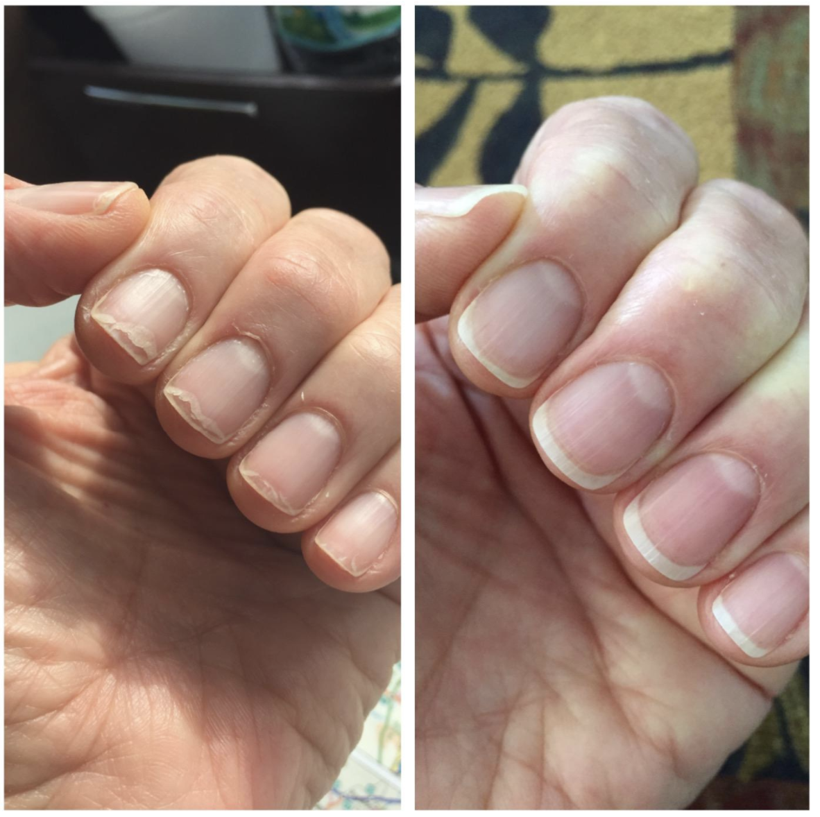 Before and after using cuticle nail oil