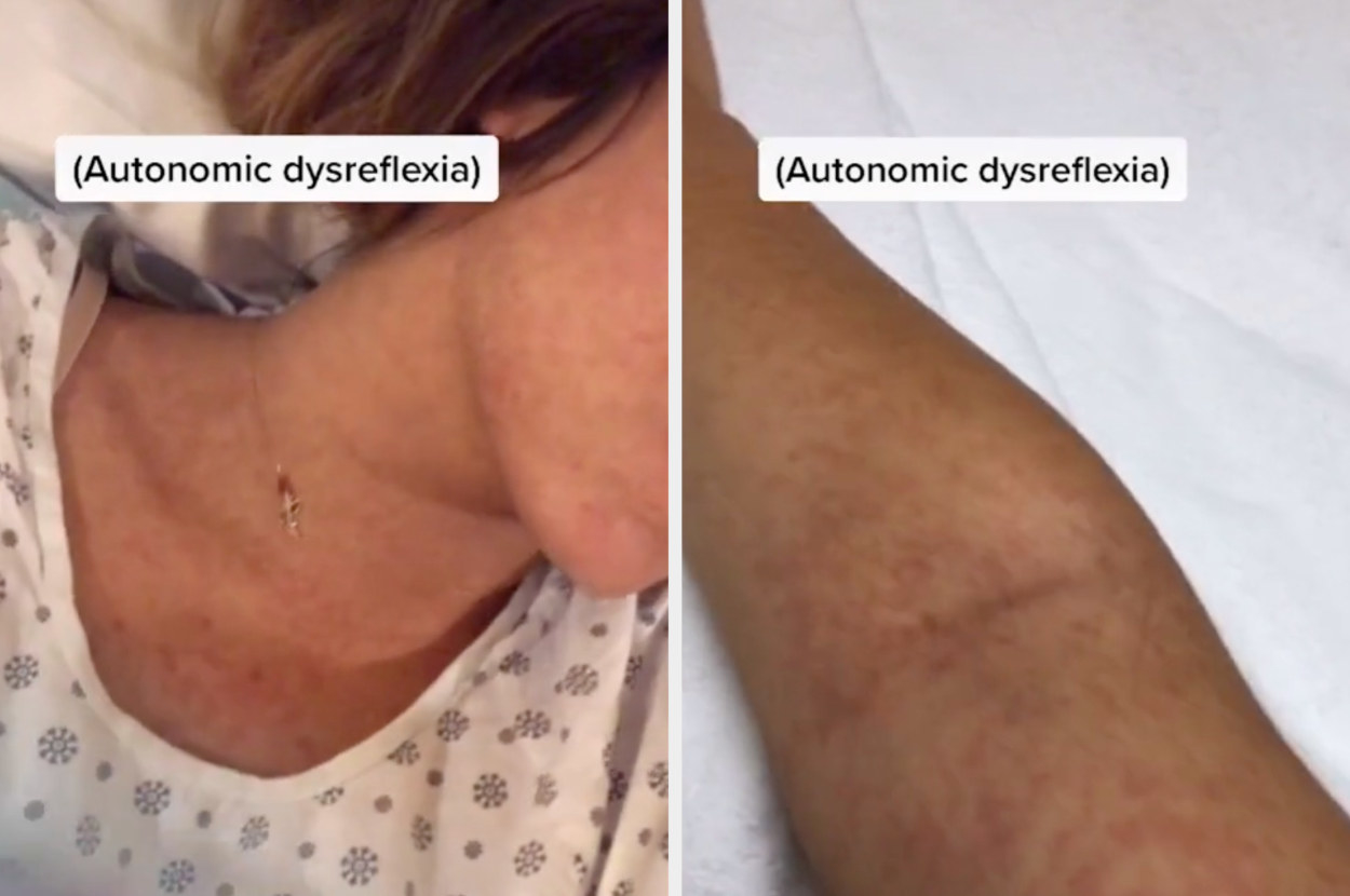Jessica's skin turning red from autonomic dysreflexia