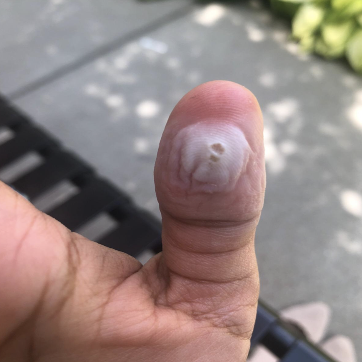 a reviewer showing a wart on their thumb