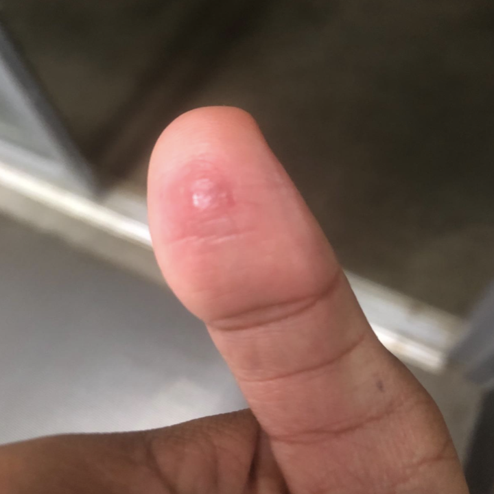 the same reviewer showing the wart practically gone after using the pads
