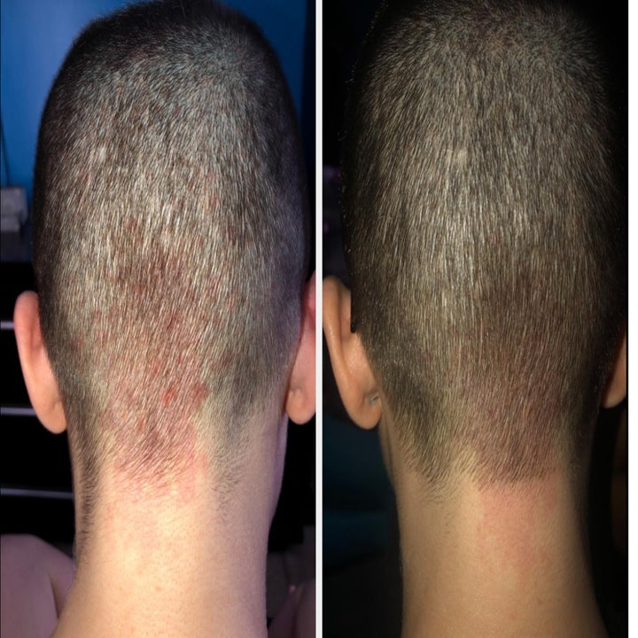 A reviewer image of the back of their head with red marks under the hairline and an after pic with the spot significantly less red