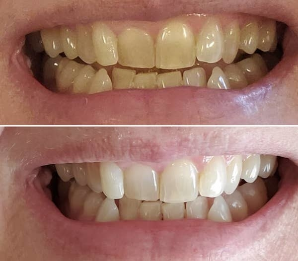 on top, a reviewer's teeth looking yellow, and on the bottom, the same reviewer's teeth now looking more white