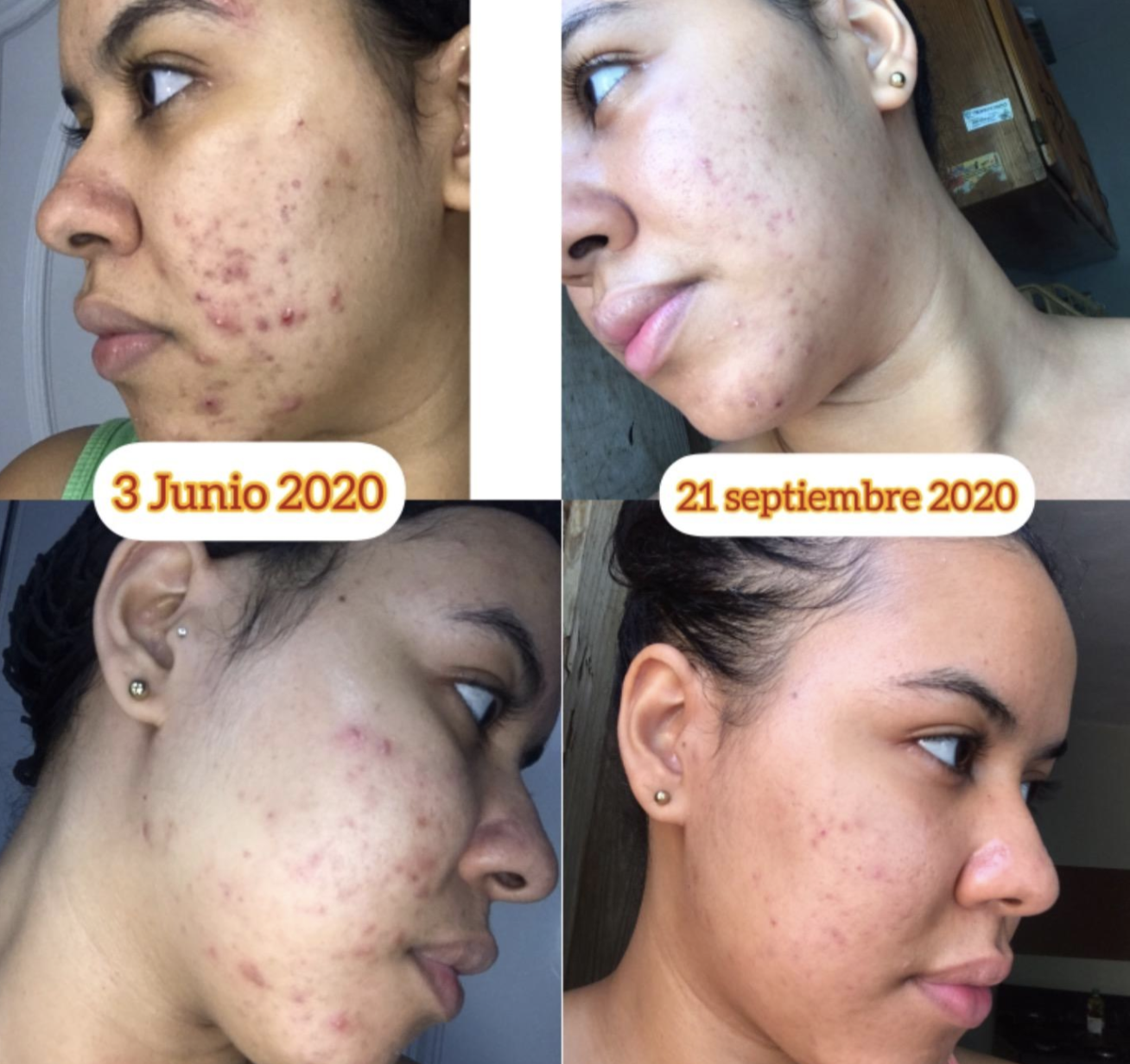 on the left, a reviewer showing the acne on their face in June 2020, and on the right, the same reviewer showing their acne has started to clear up in September 2020