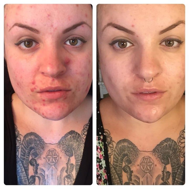 Another reviewer showing before and after with less severe acne after using the lotion