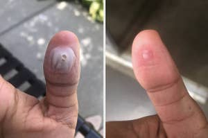 a before-and-after photo for wart pads