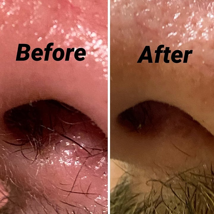 reviewer before-and-after photo showing their nose hairs completely trimmed up