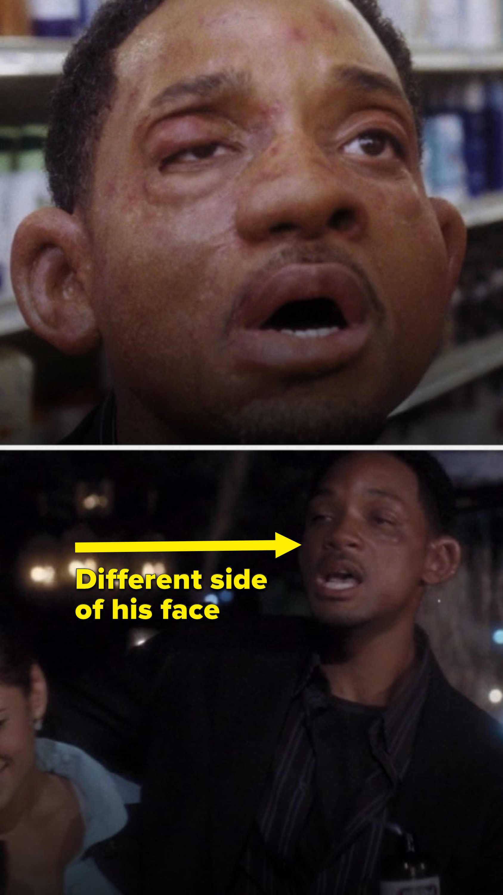 The right side of Hitch's face is swollen, but then the left side of his face is the side recovering