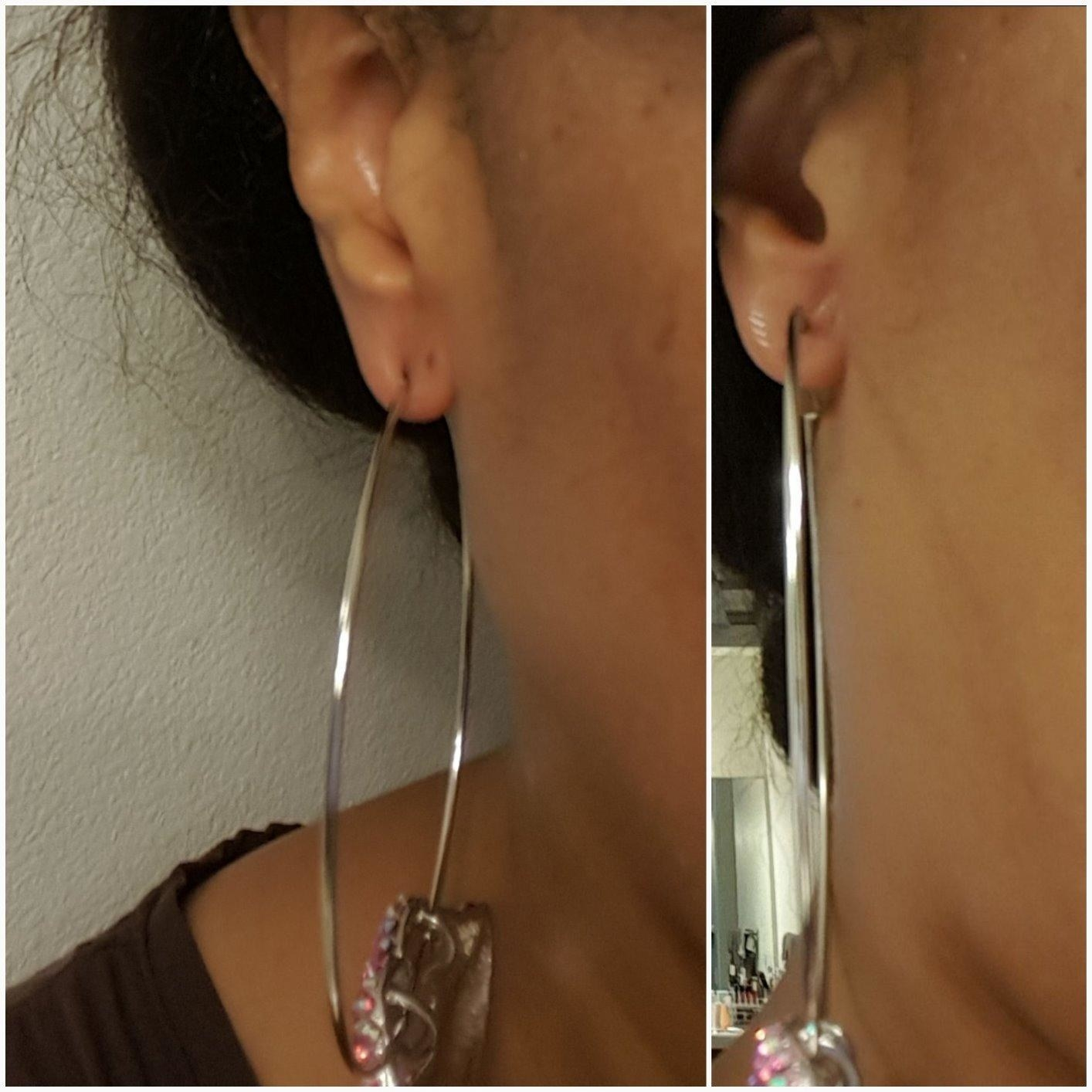 Before photo of a reviewer wearing large hoops and their piercing hole appears slightly stretched next to an after photo of the same reviewer wearing a patch so the earring doesn't look droopy