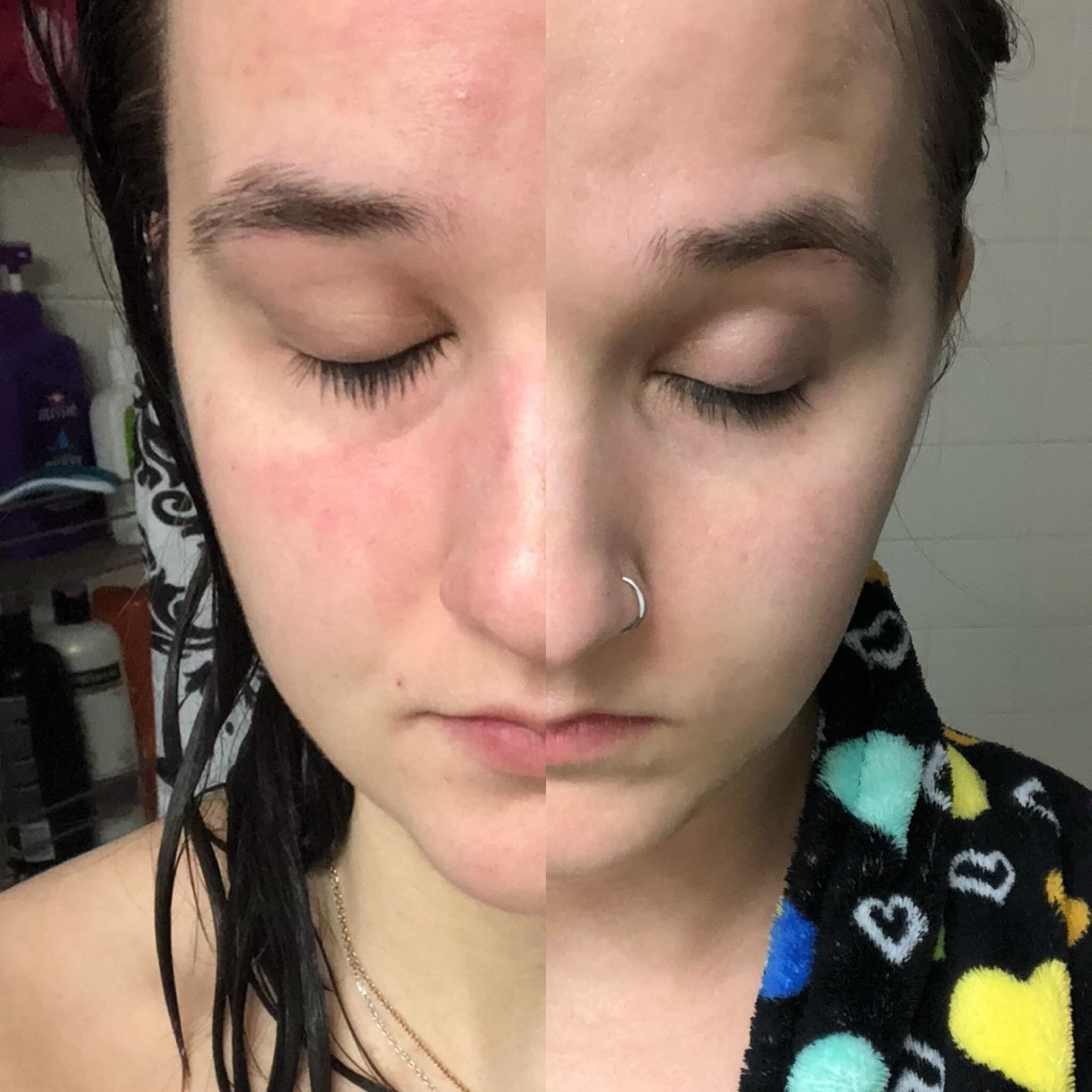 Reviewer showing before and after using the serum, now with calm skin