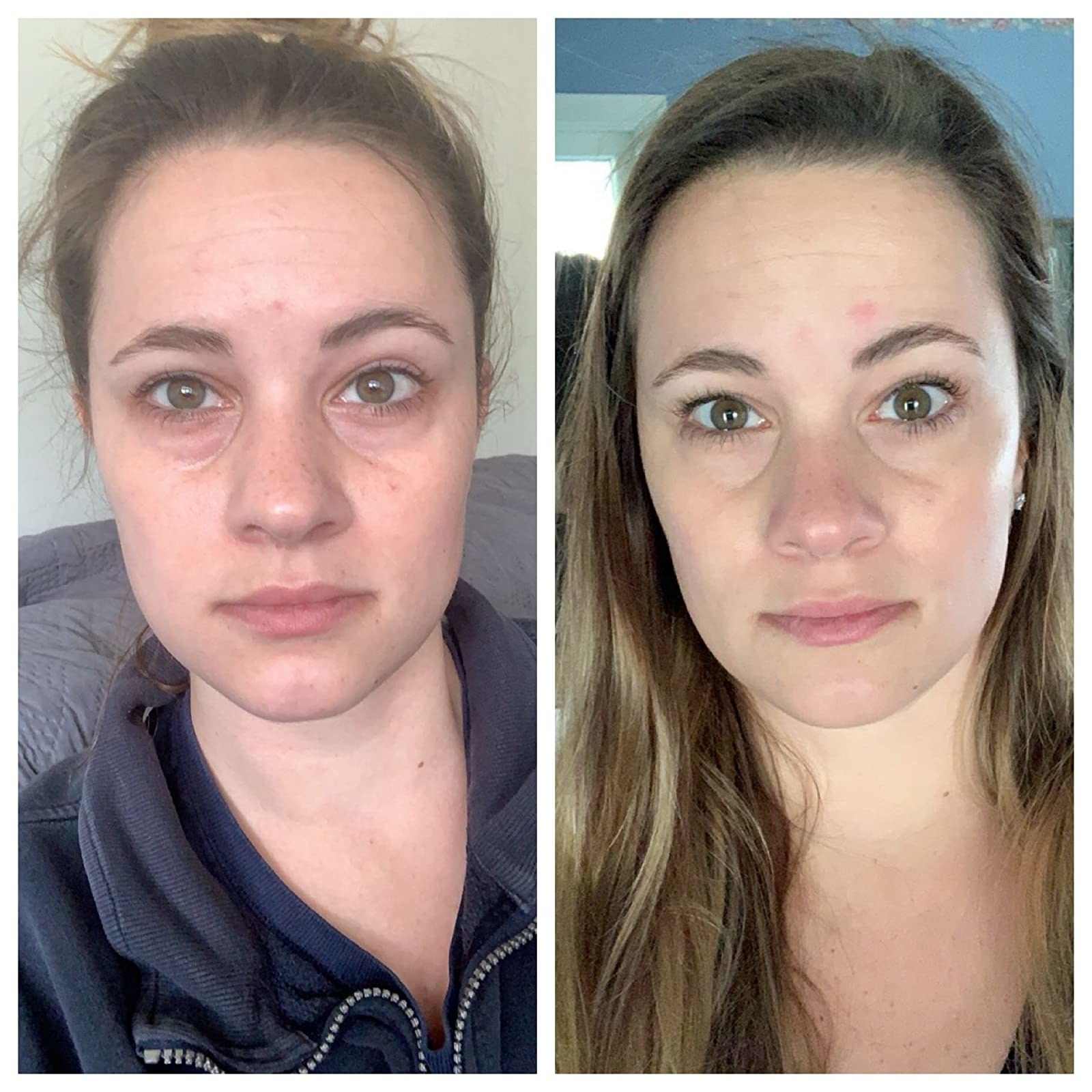 Reviewer showing before and after using the eye cream