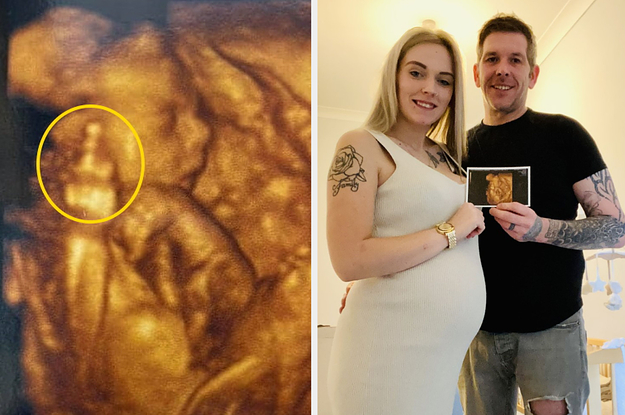 This Mom Got An Ultrasound And Her Baby Gave Her The Middle Finger