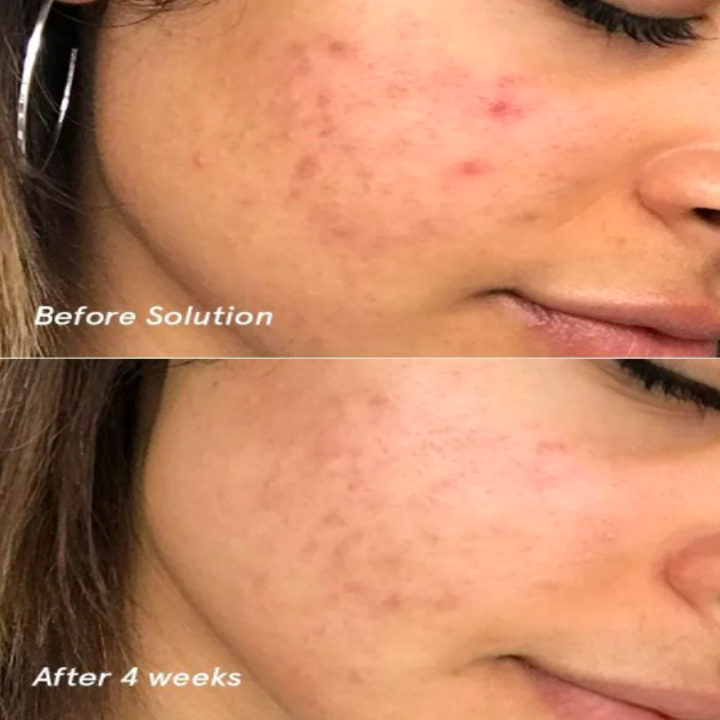 A before-and-after photo showing a person's acne on their cheek clearing up after four weeks of using the Solution