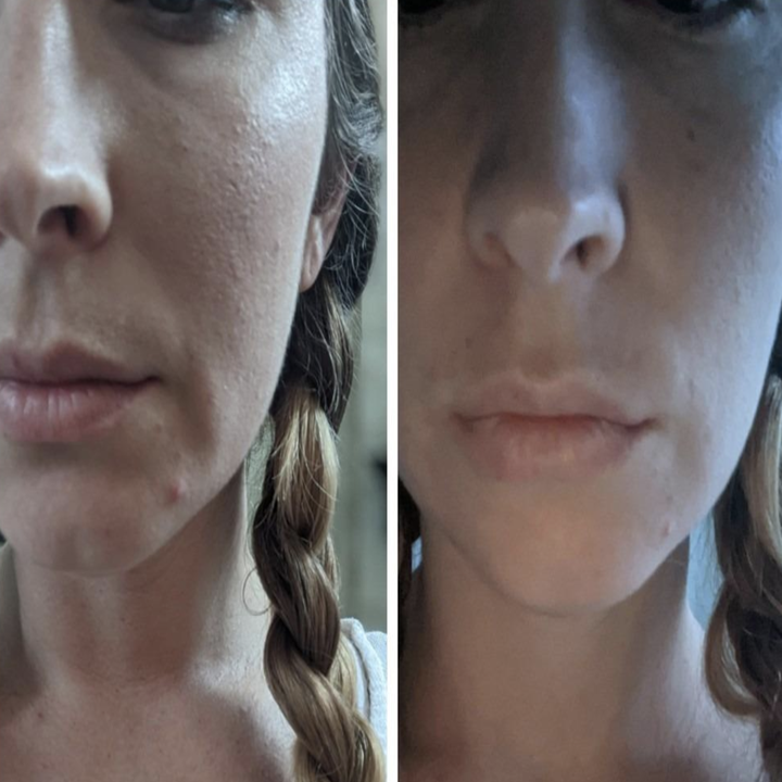 On the left, a reviewer's face with a small pimple on, and on the bottom, the same reviewer's face with the pimple practically gone