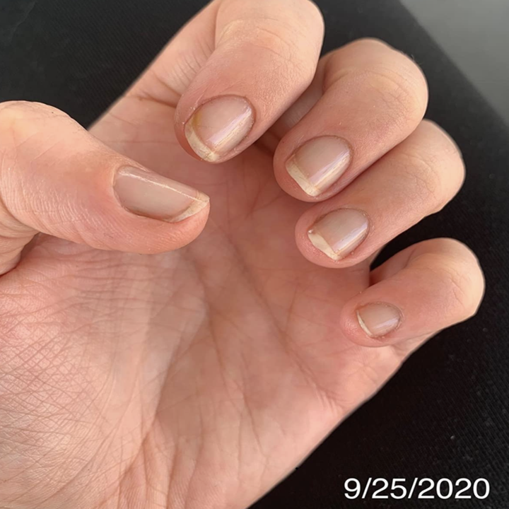 a reviewer's nails looking short