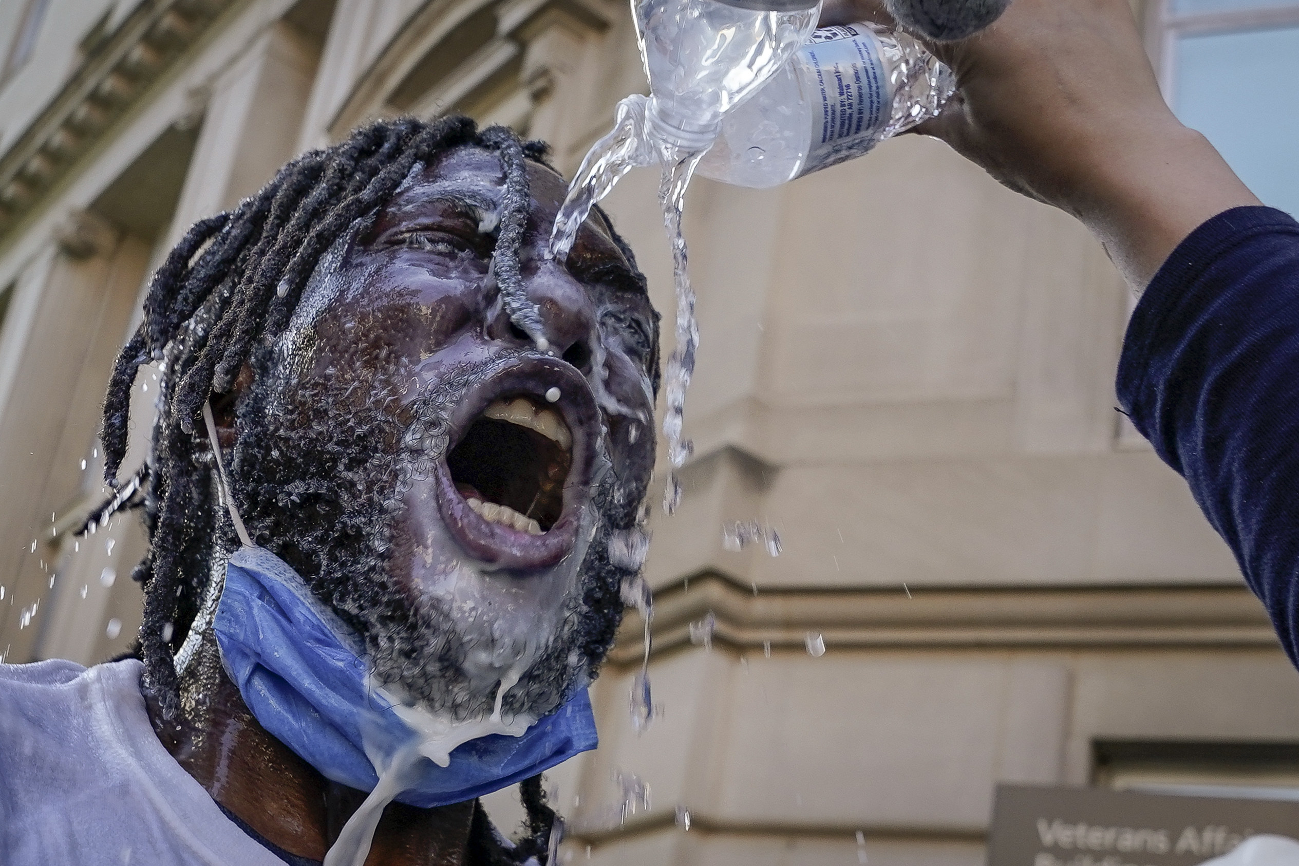 A protestor being doused with water and milk after being pepper sprayed