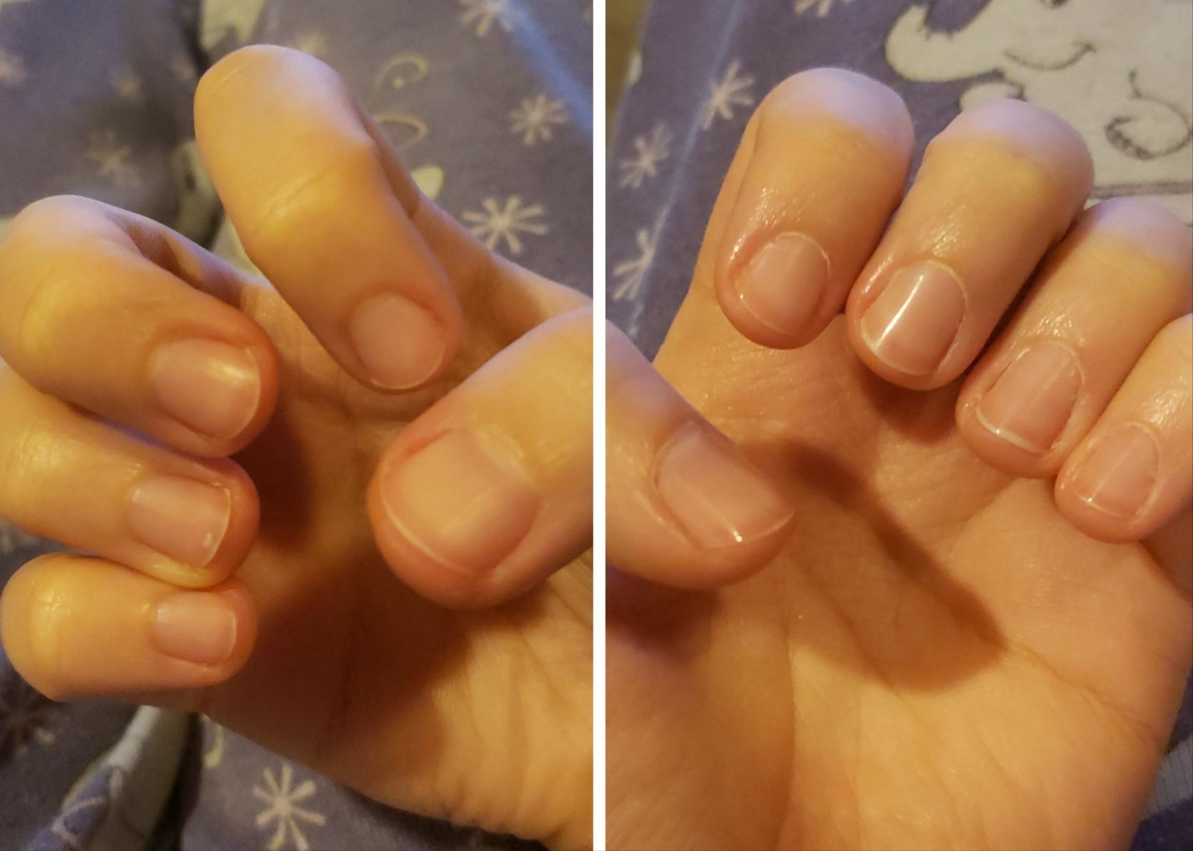 reviewer before-and-after photo showing their nails considerably shinier after using the nail file