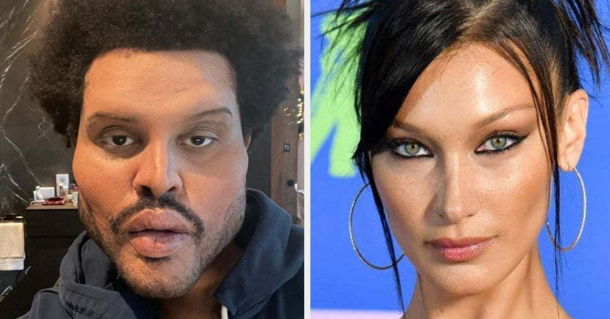 Fans Think The Weeknd's Plastic Surgery Look Is A Reference To Ex Bella Hadid – BuzzFeed