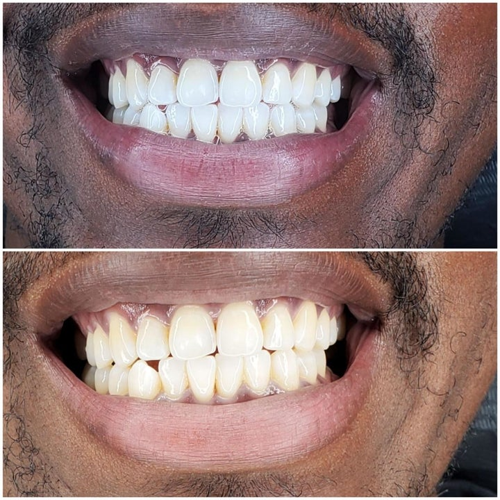 Another reviewer's before and after showing the teeth looking much whiter