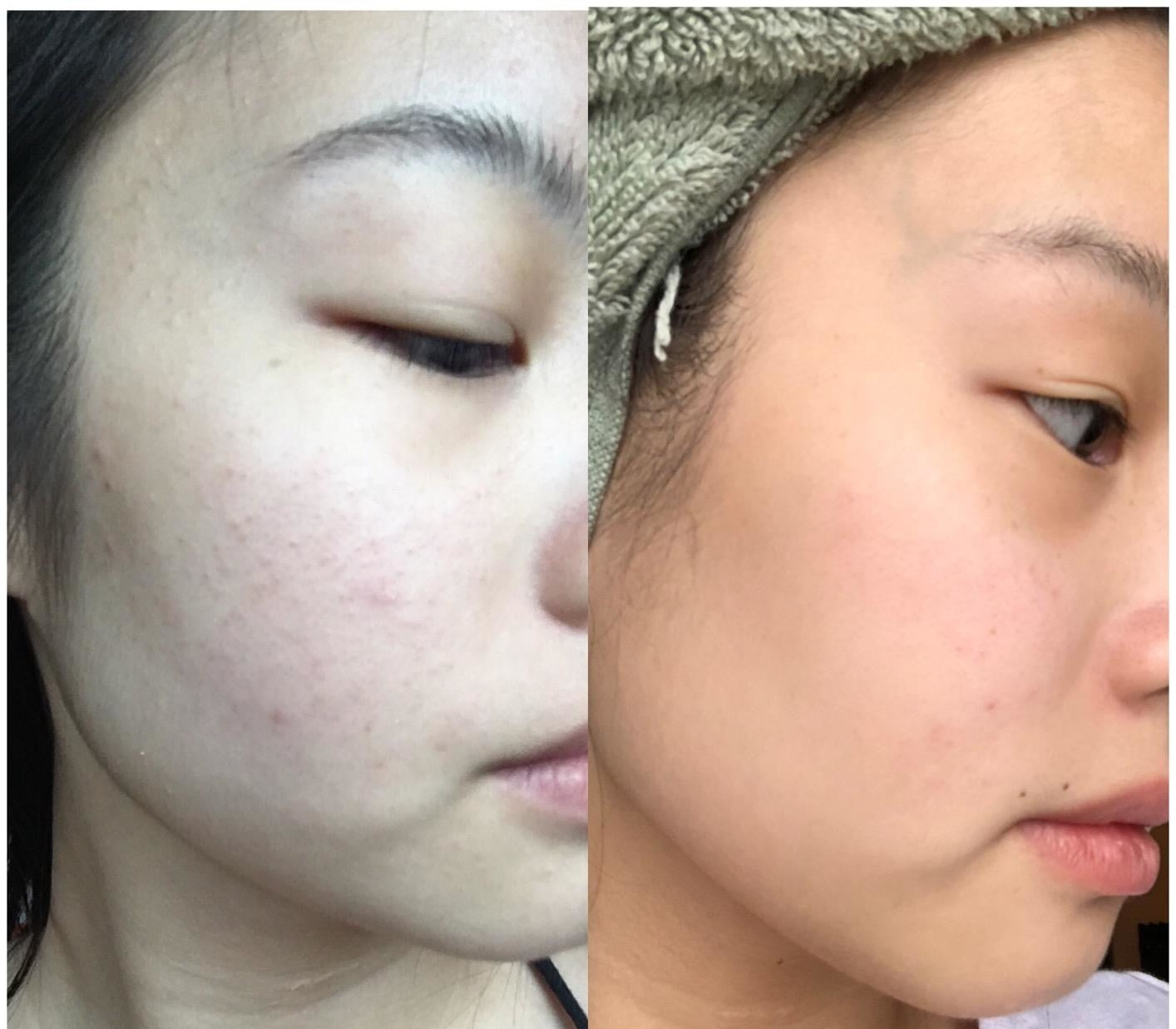A two-paneled reviewer photo showing a face with red acne on the cheeks on the left, and a face with a clear complexion on the right.