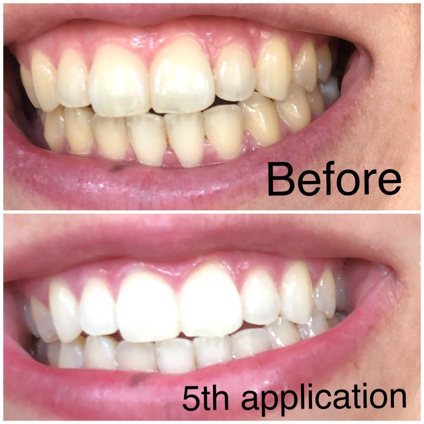Reviewer photo showing before-and-after results of using LED teeth whitening kit