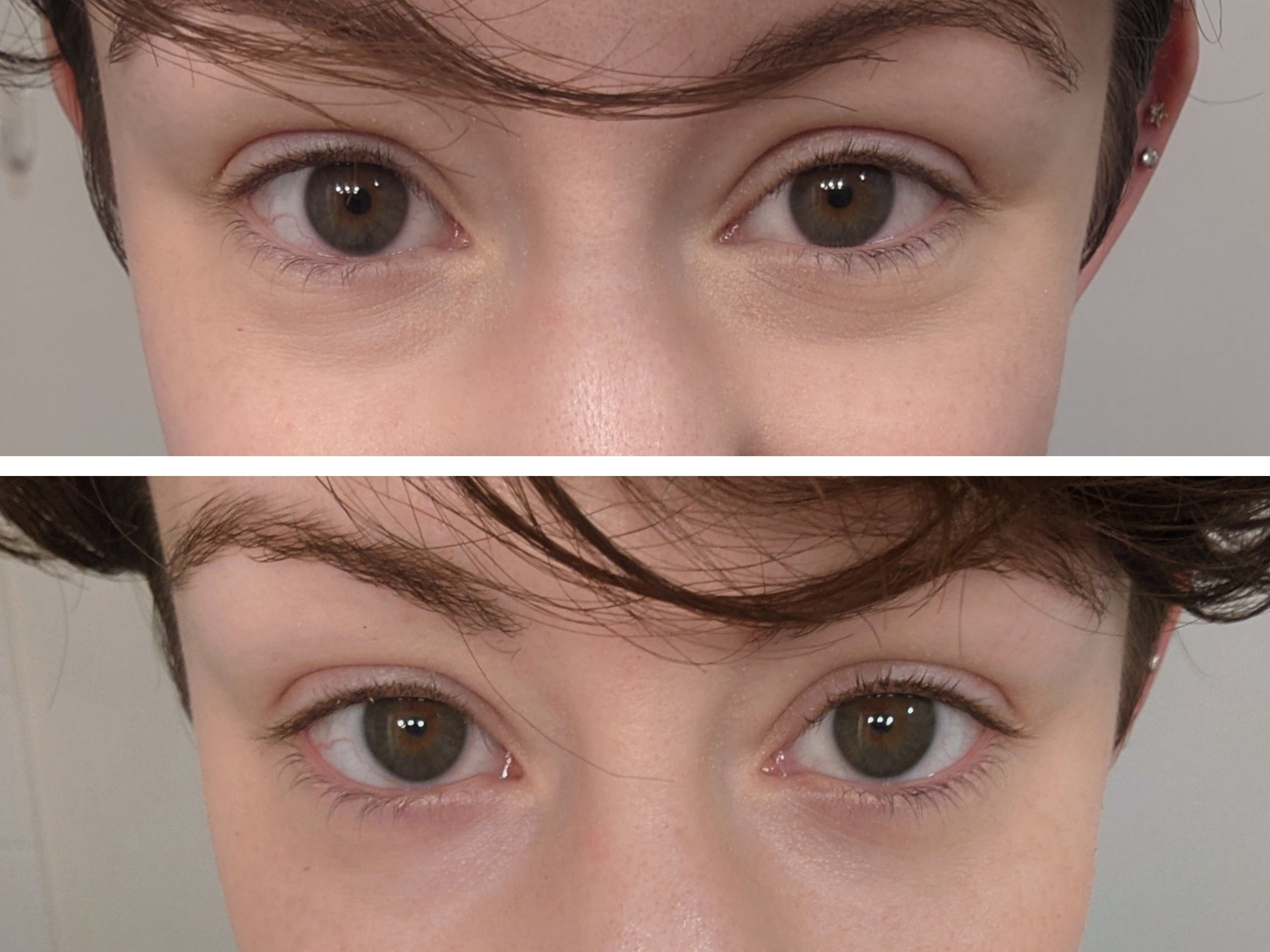A horizontally split image with the top showing a close-up of eyes with dark circle and the photo below showing the same eyes with the appearance of the dark circles reduced