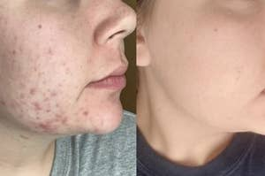 reviewer with visible acne and redness on jawline on the left and visibly less acne on the right