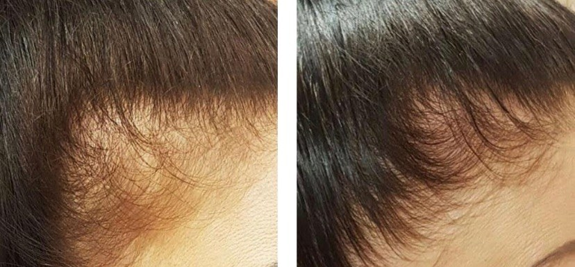 reviewer before and after photo showing their hairline noticeably fuller and thicker after using the shampoo
