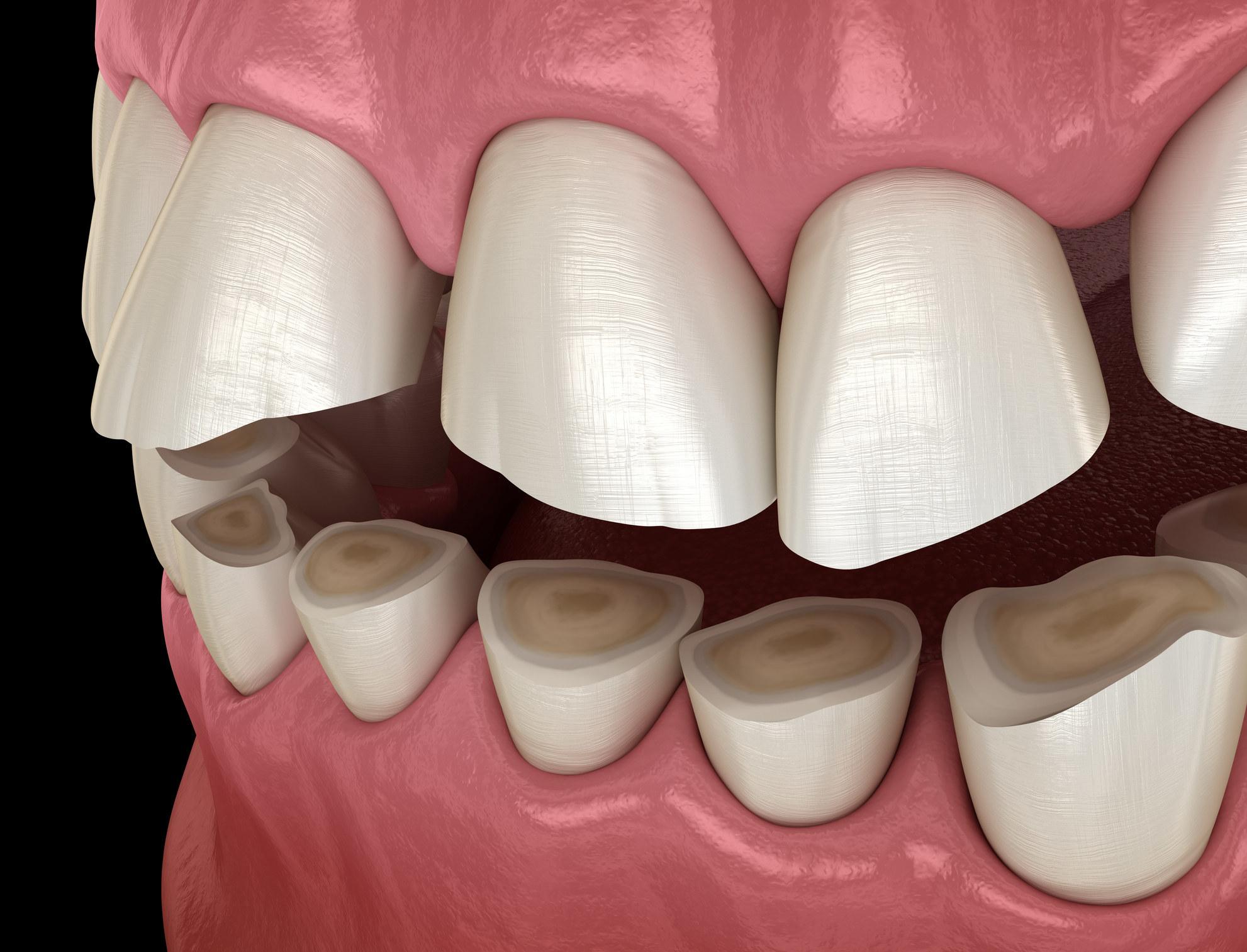 Ground down teeth