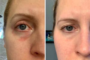 A person with red under eye // The same person sans a red under eye